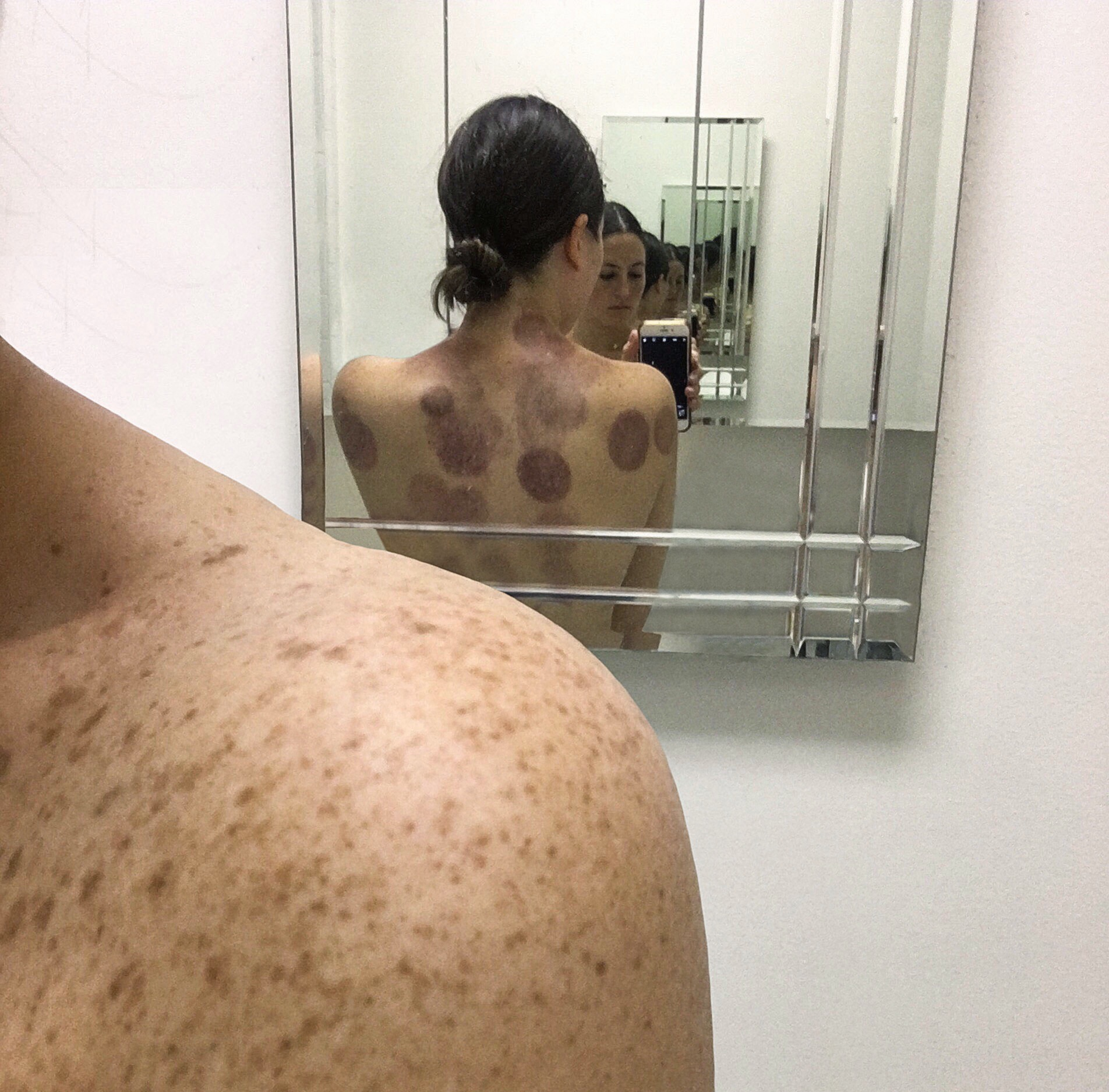 Cupping Results Dr Kara Aculand Los Angeles